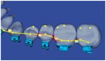 Braces Archwire Placement on 3-D Orthodontic Scan of Teeth